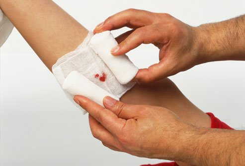 How to Stop Bleeding Minor Cuts, Scrapes, Bruises and Nosebleeds